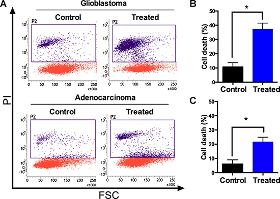 Metallacycle 4 induced cell death in glioblastomaand adenocarcinoma.