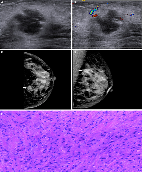 Oncotarget | Mammography and ultrasound effective features in