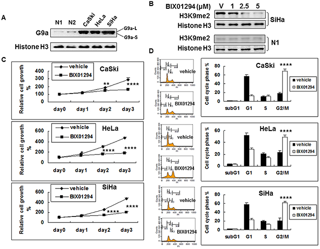 G9a expression in cervical cancer cells and the anti-cell proliferation effect of G9a chemical inhibitor BIX01294.