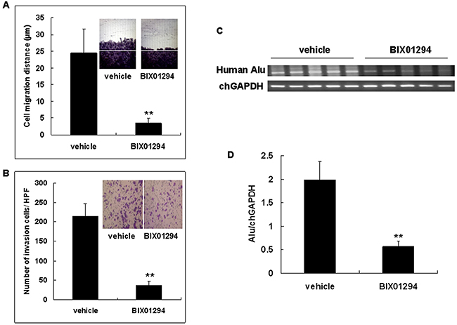 G9a inhibitor BIX01294 inhibits cervical cancer cell migration and invasion.