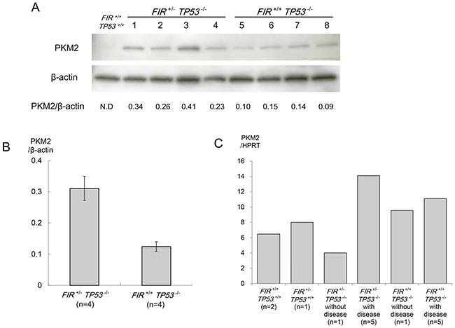Western blot analysis of pyruvate kinase (PK) M2.