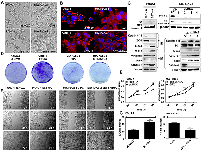 SET isoform 2 induces EMT and promotes growth, migration, and invasion of pancreatic cancer cells.
