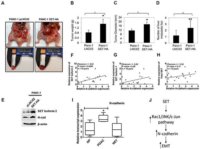 SET isoform 2 overexpression increased tumor growth and metastasis in orthotopic pancreatic cancer mice model.