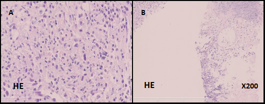 Microscopic findings of the patient's lung biopsy specimen.