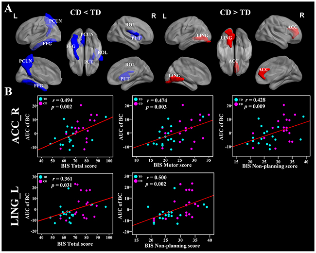 Brain regions showing disrupted nodal network properties in brain functional networks in CD group and their relationships with clinical variables.