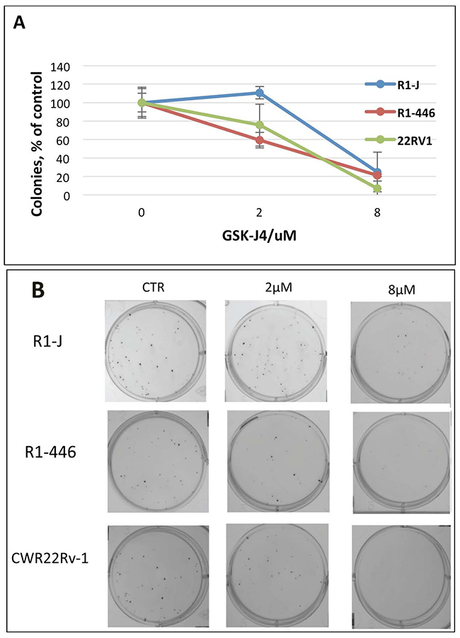Analysis of GSK-J4 post-treatment effect by colony formation assay.