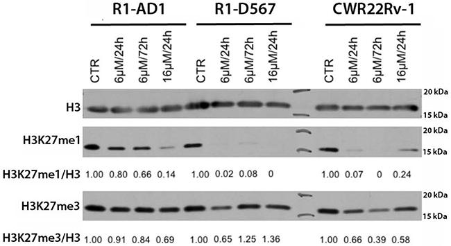 GSK-J4 treatment affects levels of H3K27 methylation.