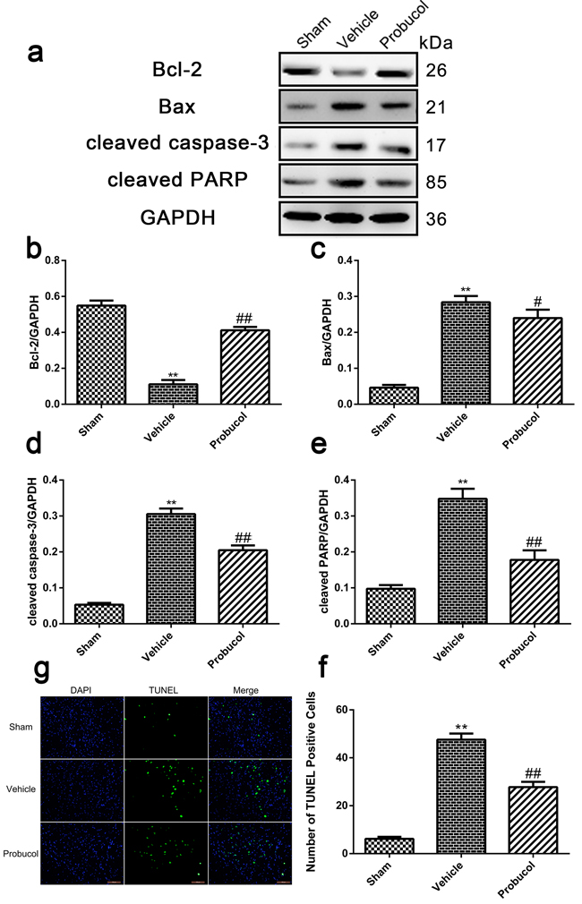 Probucol attenuates apoptosis caused by spinal cord injury in rat.
