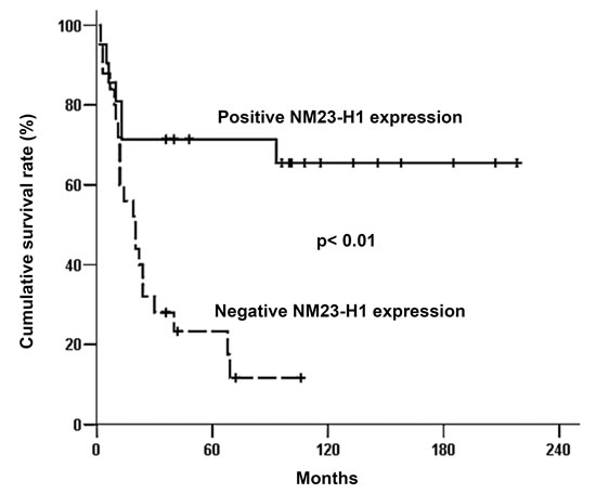 Overall survival curve of 46 patients with head and neck squamous cell carcinoma associated with NM23-H1 expression of primary tumors.