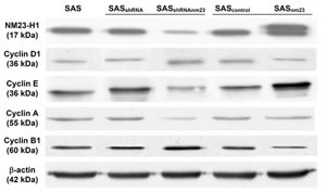 Western blot analysis of the protein levels of NM23-H1 and cyclin D1, E, A1, and B1 in the SAS head and neck squamous cell carcinoma clones.