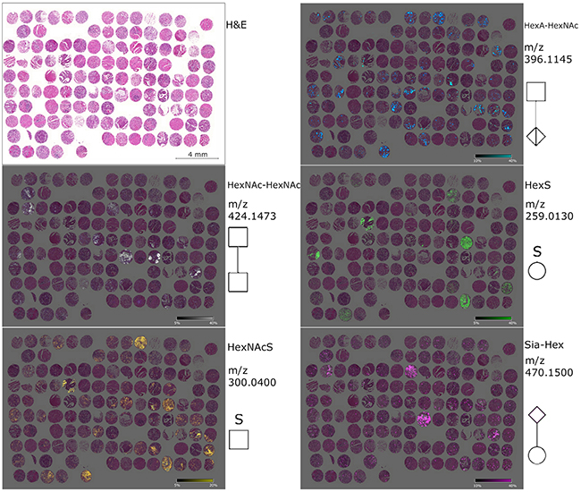 Ion maps of different glycan fragments analyzed in the gastric cancer tissue microarray.