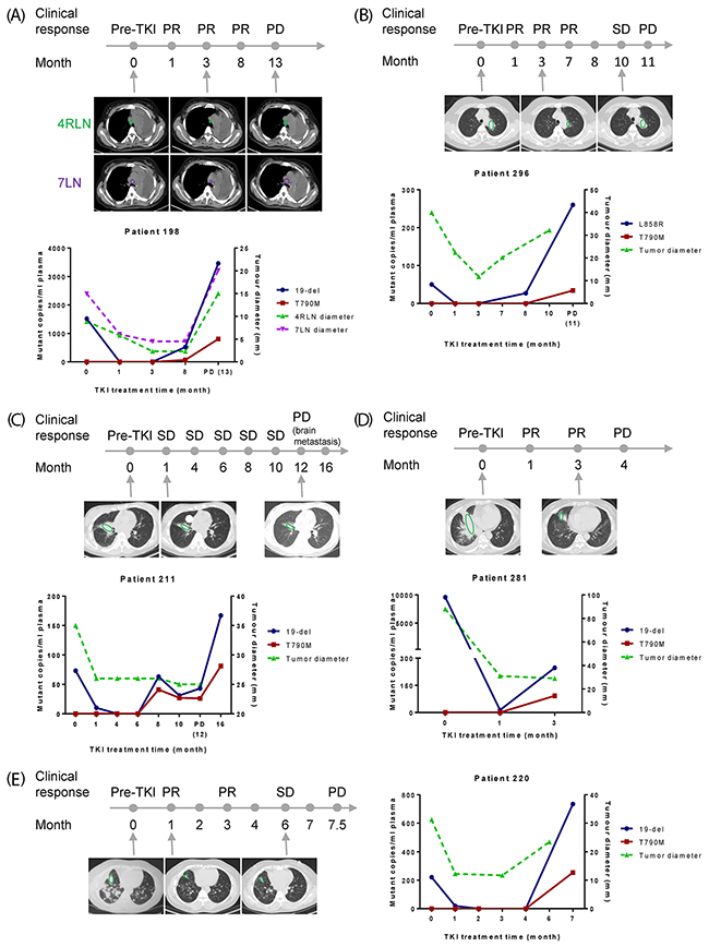 Early detection of resistance by plasma EGFR mutation testing.