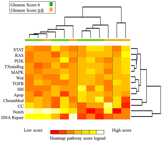 Heatmap of pathway scores for all intra-prostatic lesions. Samples are colored according to Gleason score (green, GS 6; orange, GS ≥8).