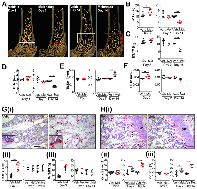 Melphalan treatment increases osteoclast numbers in bone and reduces bone mass in mice.