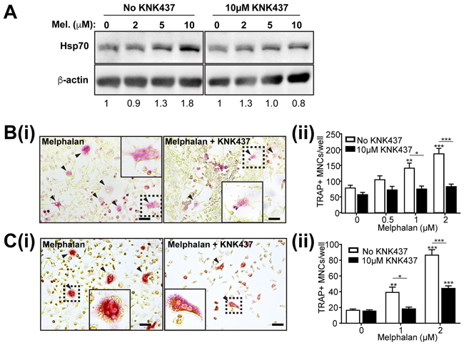 Enhancement of osteoclast formation caused by melphalan is reduced by HSP inhibitor KNK437.