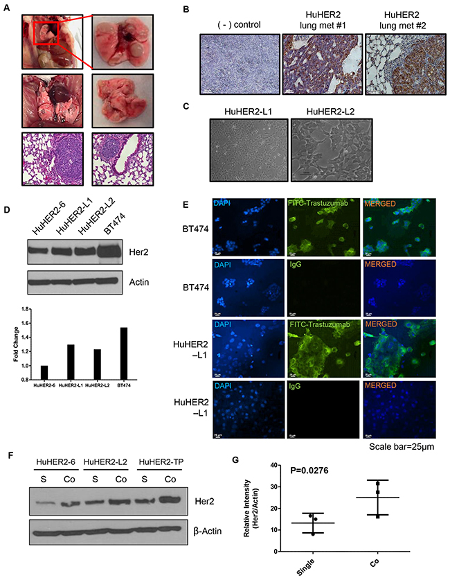 Characterization of spontaneous lung metastases in HuHER2 transgenic mice and establishment of HuHER2-Lung metastasis cell lines overexpressing human HER2.