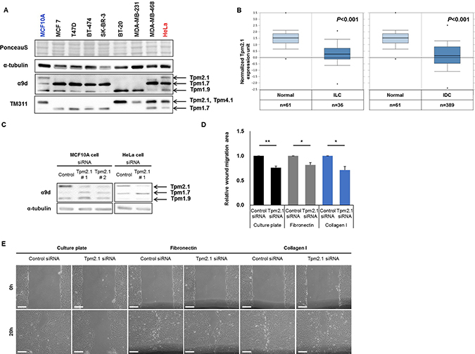 Tpm2.1 is downregulated in breast cancer and Tpm2.1-silencing in MCF10A retards wound healing migration independent of 2D substrates.