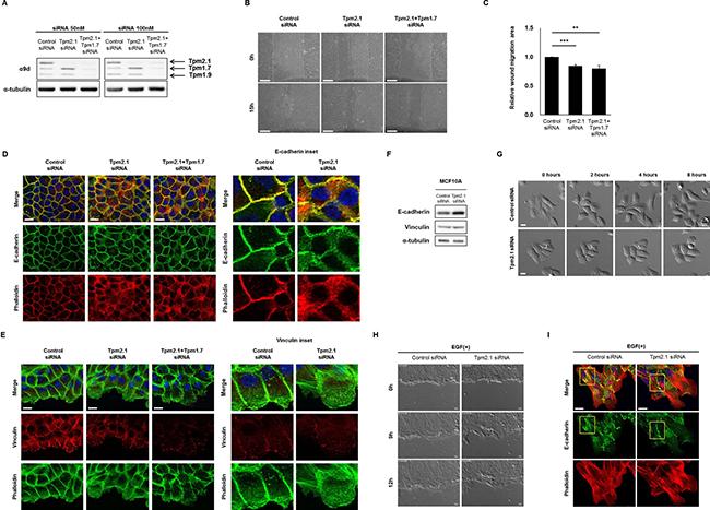 Downregulation of Tpm2.1 retards collective cell migration.