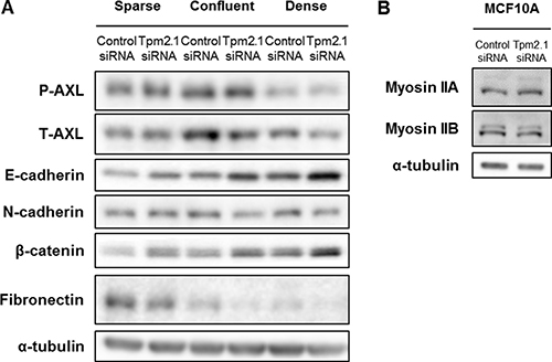 Downregulation of Tpm2.1 affects expression of AXL, E-cadherin and β-catenin in MCF10A cells.