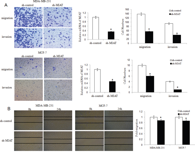 MIAT downregulation inhibited migration and invasion of MDA-MB-231 and MCF-7 breast cancer cells.