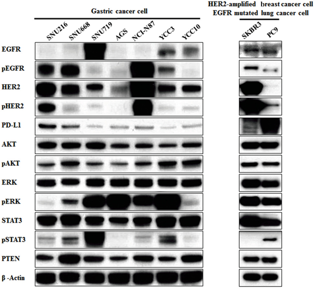 Association of PD-L1 expression with the EGFR/HER2 signaling pathway in gastric cancer cell lines.