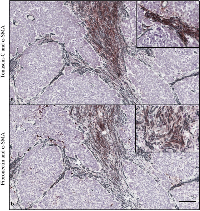 Double staining of tenascin-C (brown) and α-smooth muscle actin (α-SMA, gray) (a).