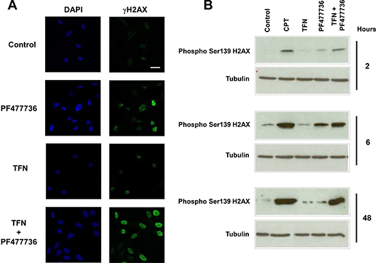 The combination of teriflunomide and PF477736 induces H2AX phosphorylation on serine 139 (γH2AX) in SUM159 triple negative breast cancer cell line.