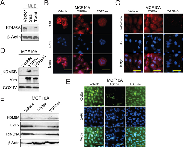 KDM6A protein levels are decreased following EMT and upregulated during MET.