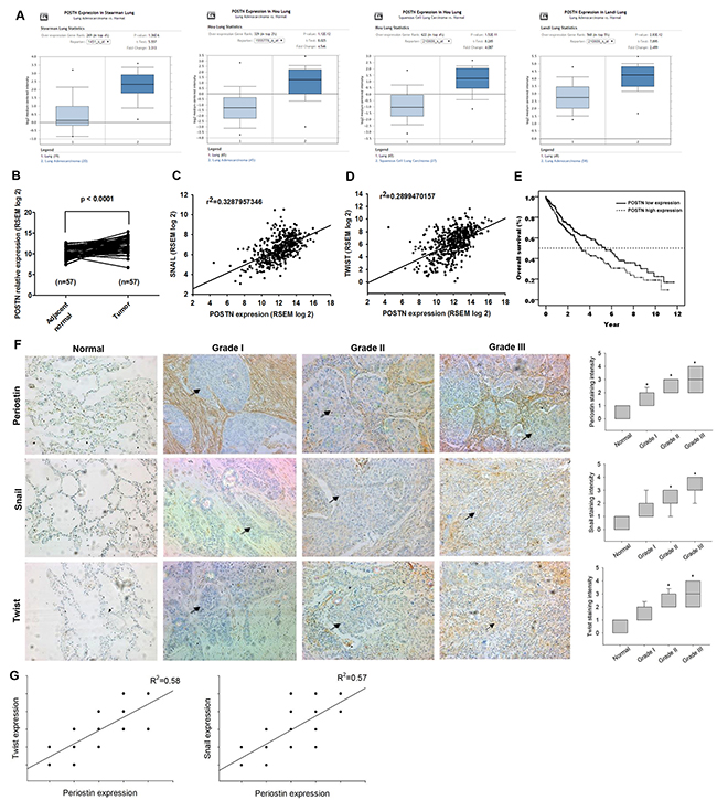 Periostin expression level and its prognostic value in lung cancer specimens.