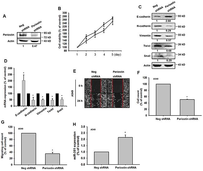 Knockdown of periostin expression represses EMT in vitro.