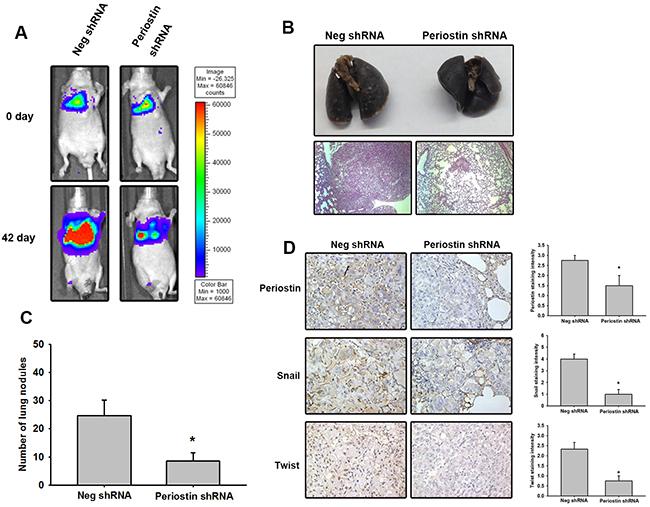 Knockdown of periostin expression represses tumor growth in vivo.