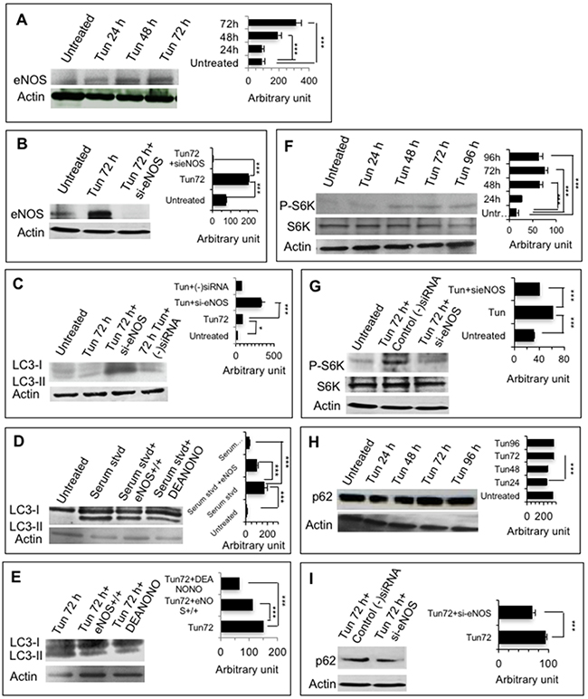 eNOS inhibits autophagic degradation and accumulates p62.