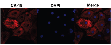 Endometrial epithelial cell culture and identification.