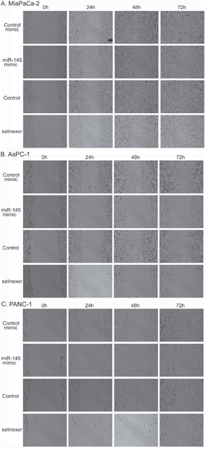Selinexor treatment or miR-145 mimic transfection suppressed the migration activity of PDAC cells.