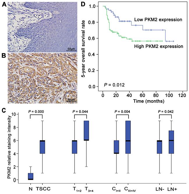 PKM2 deregulation in the development of TSCC and patient prognosis.