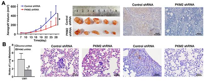PKM2 knockdown inhibits TSCC xenograft growth and lung metastasis in vivo.