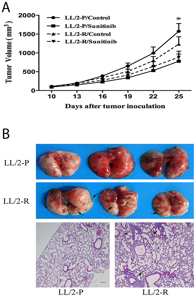 Decreased growth-inhibitory effect of sunitinib and enhanced metastatic potential of LL/2-R cell subline in vivo.