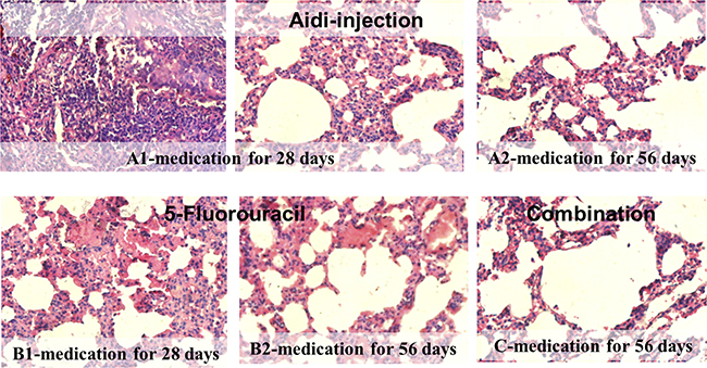 Histopathological photomicrographs of lung cancer rats after therapeutic treatment (HE, ×40).