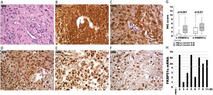FKBP51s and PD-L1 immunohistochemistry of glioblastoma samples.