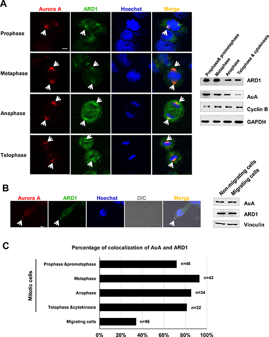 Aurora kinase A colocalalizes with ARD1 during cell division and cell migration.