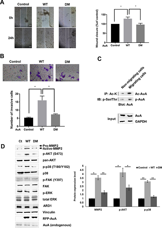 K75/K125 acetylation of AuA promotes cell migration.