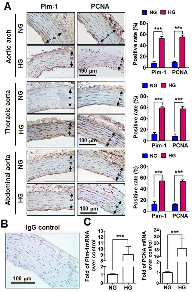 Pim-1 and PCNA expression in the tunica media (M) of the aortic arches, thoracic and abdominal arteries of STZ-induced hyperglycemia (HG) and normoglycemia (NG) rats.