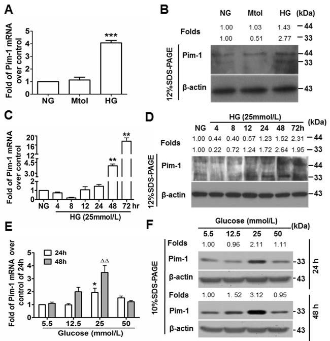 High glucose (HG) induces Pim-1 expression in cultured VSMCs.