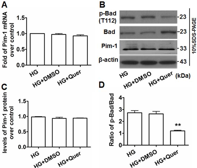 Quercetagetin inhibits Pim-1 activity but not its expression in HG-treated VSMCs.