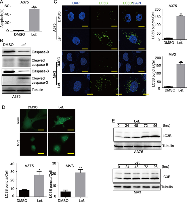 Leflunomide induces apoptosis and autophagy in melanoma cells.