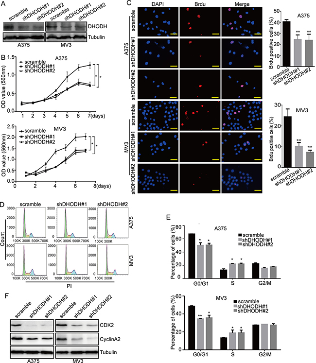 DHODH knockdown suppresses cell proliferation and induces cell cycle arrest at S phase in melanoma cells.