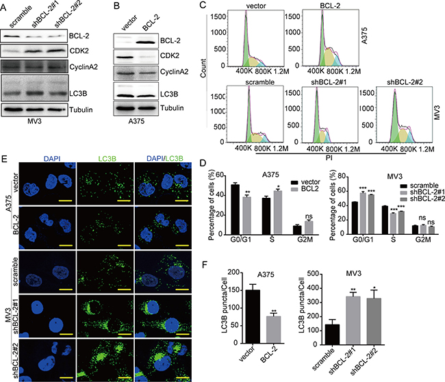DHODH inhibition-induced cell cycle arrest and autophagy are regulated by BCL-2.