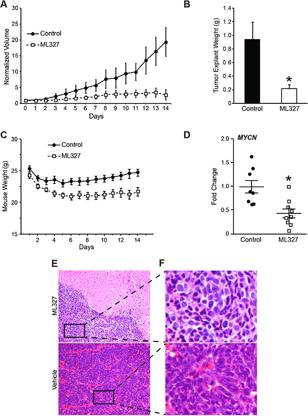Growth inhibition of neuroblastoma xenografts by ML327.