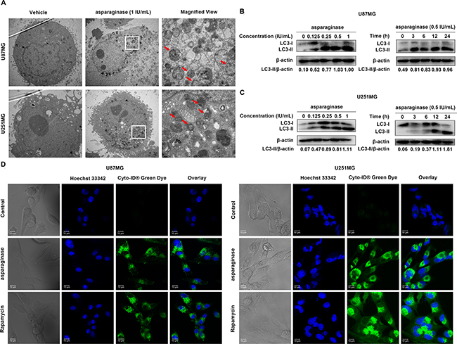Asparaginase activated autophagy in GBM cells.
