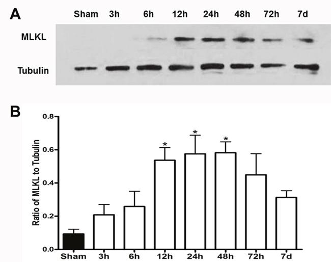 MLKL expression showed time-dependent changes after cerebral I/R injury.